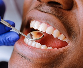 Closeup of patient during dental treatment