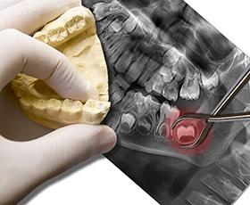 X-ray and model of wisdom tooth to be extracted