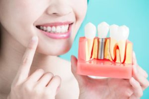 Dentist pointing to her smile while holding model of dental implants